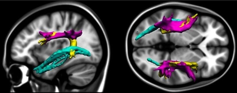 Hjerneforskning omkring ordblindhed.